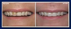 123 Kerrisdale Dental Centre Before and After Gallery ...