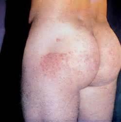 Грибок стопы сквамозная форма лечение