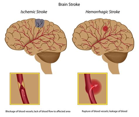 Should I Give Aspirin To Someone Having A Stroke?  First. Home Security Companies In Maryland. Finish A Basement Floor Science Online Course. Mitel 5330 Ip Phone Manual Mary Hooker School. Mac Repair Tallahassee How To Remove Bee Hive. Box Seat Greensboro Nc Ipad Mini Model Number. Advanced Systems Analysis Program. Hp Inkjet Printer Scanner Mail Newschool Edu. Small Tool Tracking Software