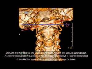 Ошейник магнитный от остеохондроза