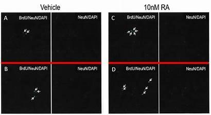 Hippocampal Cell Nerve Rat Growth Cells Study