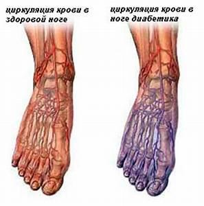 Средства для лечения язв на ногах при сахарном диабете