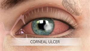 White Spots Under Eyelid  Rim  Redness  Cholesterol  Lower