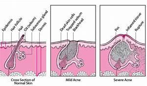 Acne - Skin Disorders