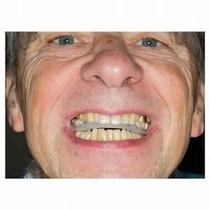 Ez Sleep Dental Guard Instructions