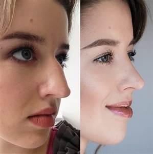 Schrankplaner De Erfahrungen : meine nasenkorrektur erfahrung cream 39 s beauty blog ~ Lizthompson.info Haus und Dekorationen