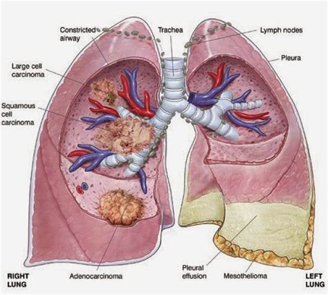 asbestosis  symptoms diagnosis treatment