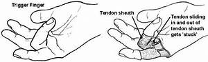 Trigger Finger  Medical Information About Trigger Fingers