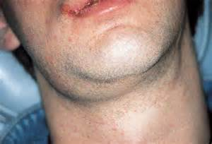 Submandibular and cervical lymph-node enlargement due to herpetic oral ... Lymphadenitis