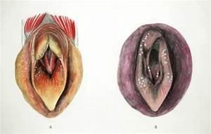 Laryngeal Hemiplegia In Horses