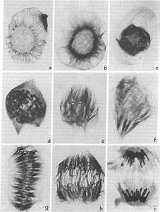 Cells Of Haemanthus Endosperm In Various Stages Of Mitosis