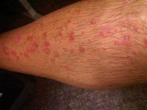 Eczema psoriasis and dermatitis