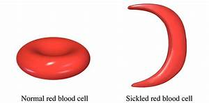 UGANDA: SICKLE CELL DISEASE IS GROWING