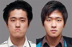 Male plastic surgery before and after | Korean plastic ...