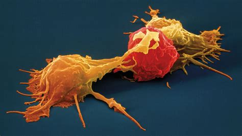 engineered natural killer cells     great