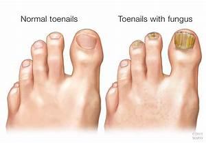 Как вылечить грибок ногтя большого пальца ноги