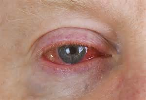 Viral Conjunctivitis - Panoptes Conjunctivitis