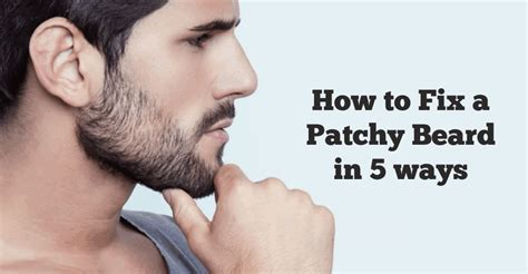 Know How To Fix Your Patchy Beard  Experts Guide