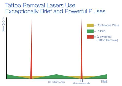 tattoo removal laser equipment buying guide  astanza