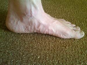 Yelling Stop  Feet And Vascularity