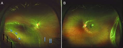 ultra wide field imaging  bilateral idiopathic retinal