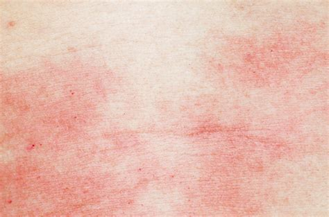 Psoriasis in hiv patients