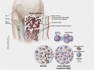 Practical Acute Myeloid Leukemia Diagram