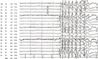 Normal EEG with Seizure
