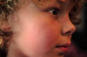 Skin Reaction Leaves Nine-year-old Branded With  U0026 39 Hull Fc U0026 39  On Cheek