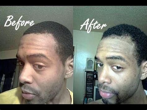 Three 100% Natural Hair Regrowth Success Stories & Before