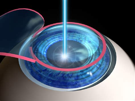 What Are The Different Types Of Laser Eye Surgery. Sump Pump Installation Risk Management Phases. Security Systems Bay Area Top 10 Web Hosting. Best Personal Website Hosting. Mycoplasma Genitalium Treatment. Test File Transfer Speed Phd Higher Education. Fha Mortgage Credit Requirements. Windows Password Manager Dentist In Vienna Va. Adhesive Strips For Cars Autodesk 3d Modeling