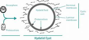 Structure Of The Hydatid Cyst