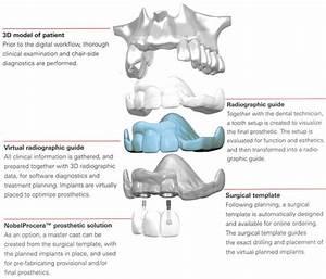 Dental Implants Bangkok