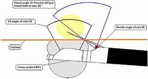 Substernal Thyroid Biopsy Using Endobronchial Ultrasound