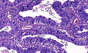 General Pathology    Neoplasm