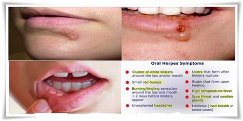 Cure Or Herpes- Natural Remedies Can Cure All Signs Of Herpes