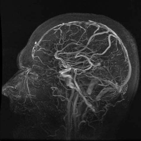 Magnetic Resonance Angiography (MRA
