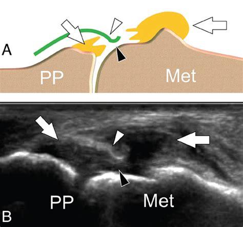 Aspetar Sports Medicine Journal - Ultrasound in wrist and ...