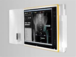 traumacadr digital orthopedic templating german With orthopedic templating software