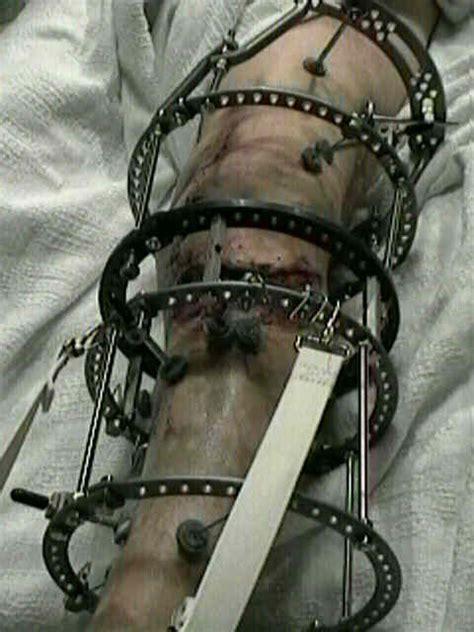 wheeless textbook  orthopaedics