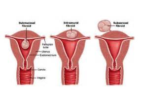 what is a uterine myoma fibroid a uterine myoma also
