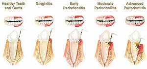 Periodontal Disease Diagnosis And Classification