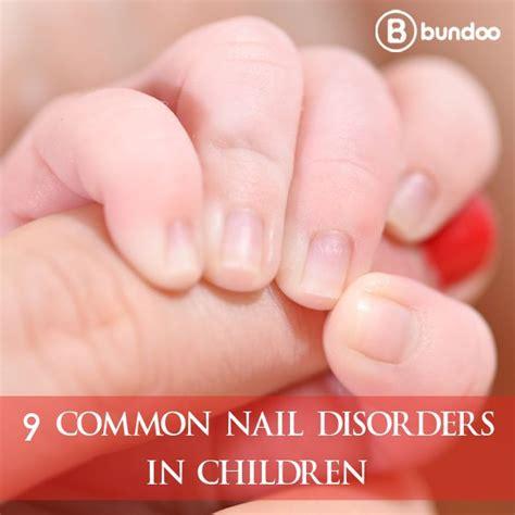 nail disorders ideas  pinterest nail