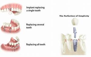 Dental Implants Glasgow   David Cashel   0141 248 1966