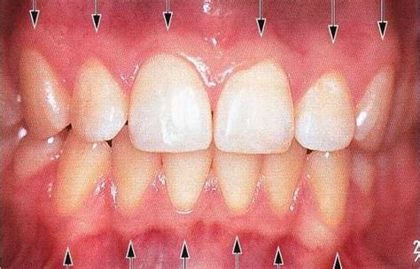 what color are your gums supposed to be information about quot mgj jpg quot on dental questions davis