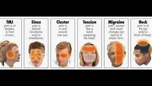 cluster headache location chart pin by gordon on nursing types of headaches chart