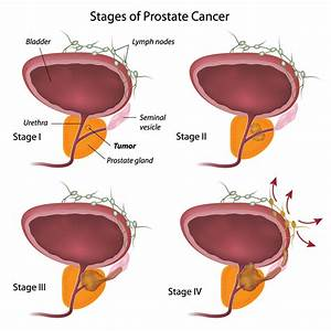 What is Prostate Cancer? | Canadian Men's Health Foundation