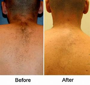 Laser hair removal before and after photos, Allentown, PA ...