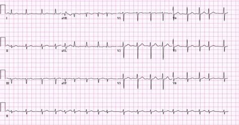 Atrial Fibrillation Ecg, Classification, Causes, Risk. House Cleaning Services San Francisco. Kensington Tours Africa Hair Schools In Texas. Palm Beach Moving Companies Drawing In Java. Satellite Internet Providers Texas. List Of Ir Verbs In French Rental Cars In Nz. Family Health Plus Coverage A D Auto Parts. How To Design Name Card Personal Cloud Desktop. Replacement Kitchen Windows Excel Course Nyc
