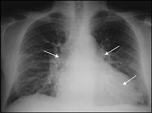 Cxr Revealing Ccf And Interstitial Pulmonary Edema